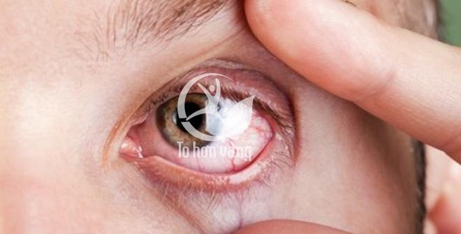 Dấu hiệu xuất hiện những vết máu trong mắt là dấu hiệu nghiêm trọng cần phải gặp bác sĩ