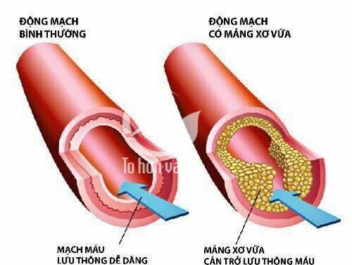 Bệnh xơ vữa động mạch là từng mảng xơ vữa tích tụ bên trong thành động mạch