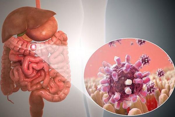 Hình ảnh: Người bị viêm loét dạ dày, ruột cấp tính